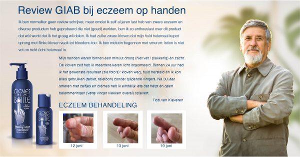 Review Gloves In A Bottle Eczeem